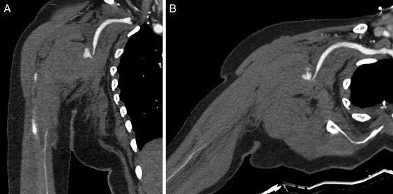 Reparación endovascular de rotura de arteria axilar tras luxación ...