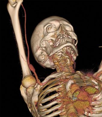 Aneurisma de arteria axilar de causa ocupacional