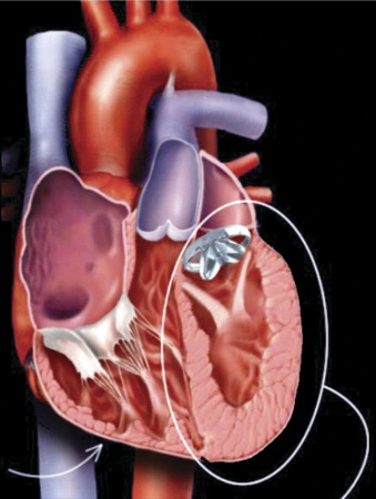 Papillary Muscle Repositioning In Valve Replacement For Left