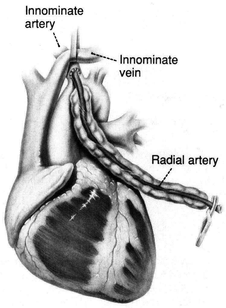 Innominate And Subclavian Arteries As An Inflow Of Free Arterial