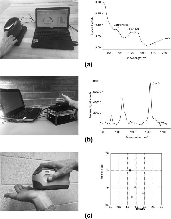 Optical assessment of skin carotenoid status as a biomarker of ...