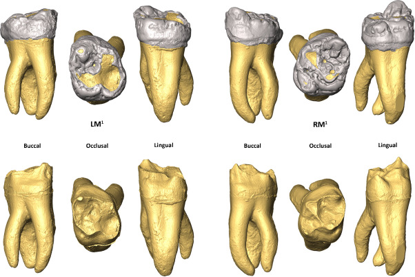 Lower mulberry molars with marked hypoplastic areas | Research Diagram