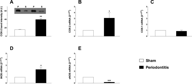 Endothelial dysfunction in rats with ligature-induced