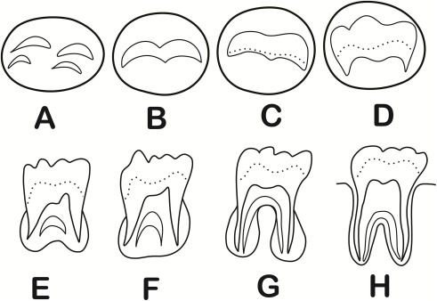 Genetic and environmental influences on third molar root