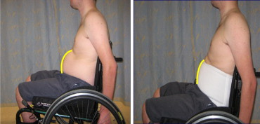 Abdominal Binder Improves Lung Volumes And Voice In People With Tetraplegic Spinal Cord Injury Sciencedirect