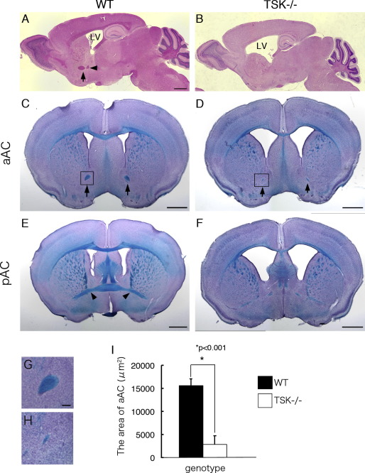 Tsukushi is required for anterior commissure formation in mouse ...