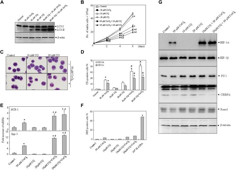 Chloroquine enhances cobalt chloride-induced leukemic cell
