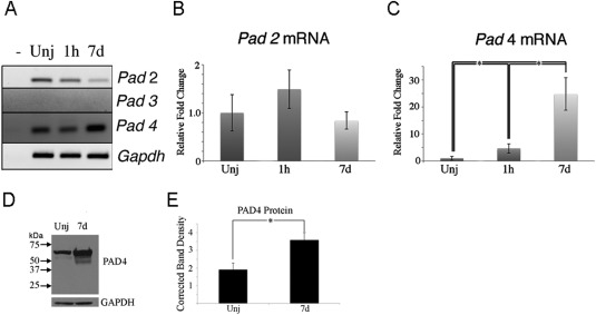 Expression of peptidylarginine deiminase 4 in an alkali injury model