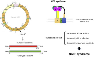 A 2 bp deletion in the mitochondrial ATP 6 gene responsible for the