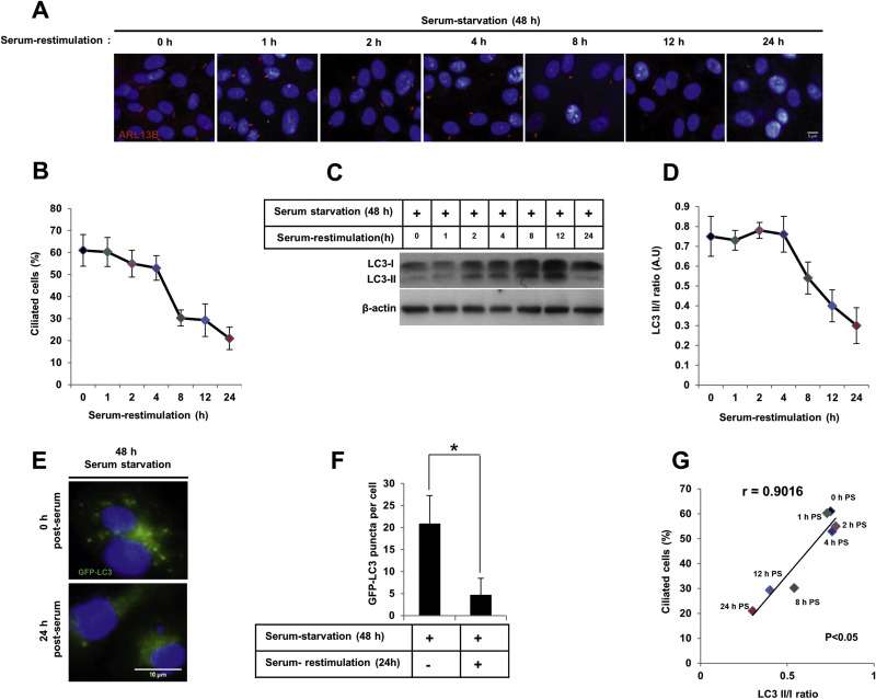 Autophagy alteration prevents primary cilium disassembly in