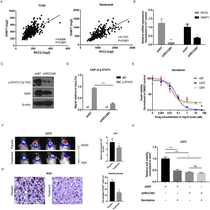 RCC2 promotes proliferation and radio-resistance in glioblastoma via