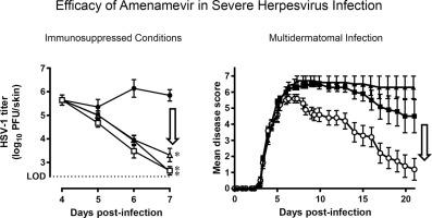 Antiviral efficacy of the helicase-primase inhibitor