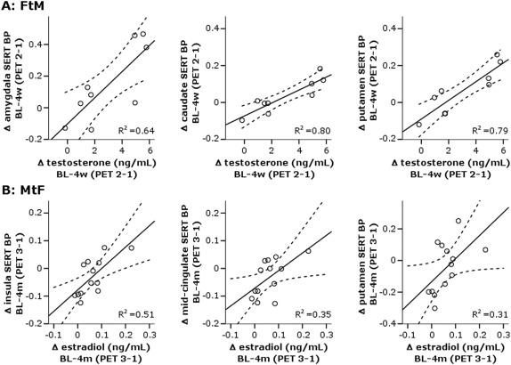 High-Dose Testosterone Treatment Increases Serotonin Transporter