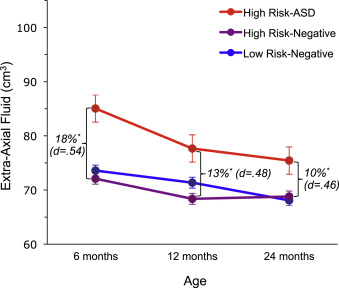Excess Brain Fluid May Forecast Autism >> Increased Extra Axial Cerebrospinal Fluid In High Risk