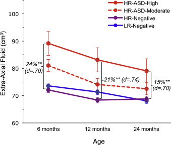 Excess Brain Fluid May Forecast Autism >> Increased Extra Axial Cerebrospinal Fluid In High Risk Infants Who