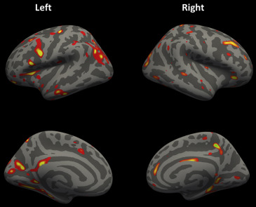 Structural Brain Abnormalities Of Attention Deficithyperactivity