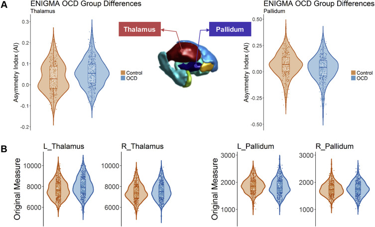 Mapping Cortical and Subcortical Asymmetry in Obsessive