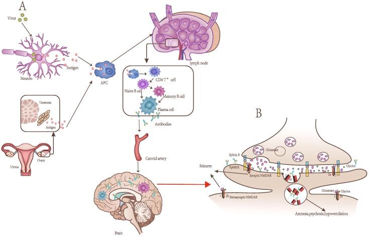 Anti N Methyl D Aspartate Receptor Encephalitis A Review Of
