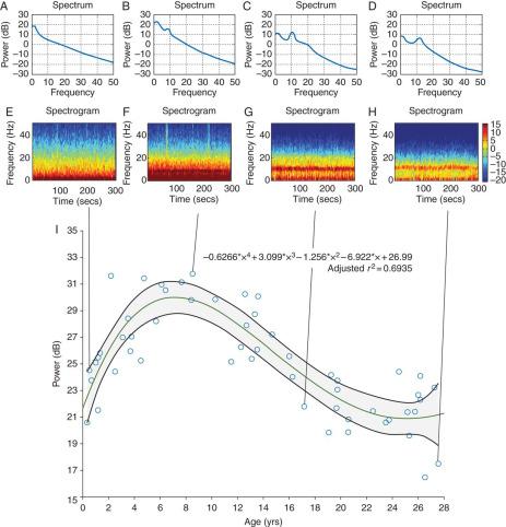Age-dependency of sevoflurane-induced electroencephalogram
