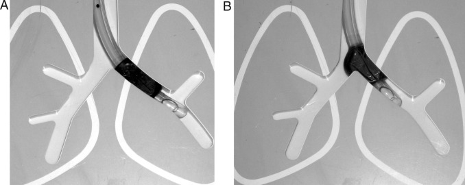 Lung separation and the difficult airway - ScienceDirect