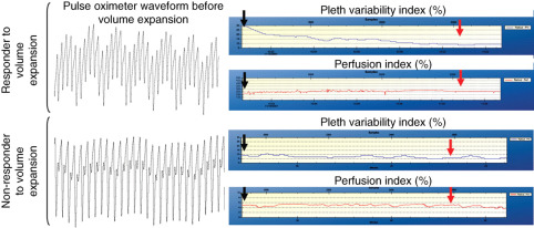 Pleth variability index to monitor the respiratory variations in the
