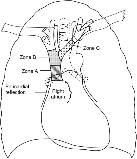 Fatal Cardiac Tamponade As A Result Of A Peripherally Inserted