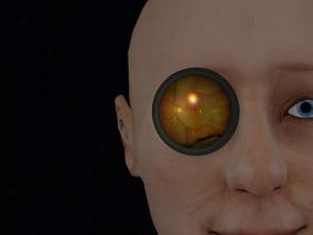 Teaching binocular indirect ophthalmoscopy to novice residents using
