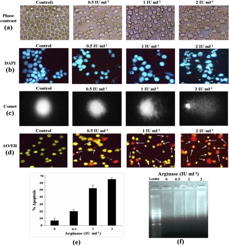 Arginase purified from endophytic Pseudomonas aeruginosa IH2