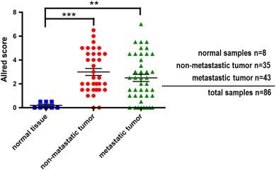 Allred immunohistochemistry scores for CD147 staining of oral cancer tissue…