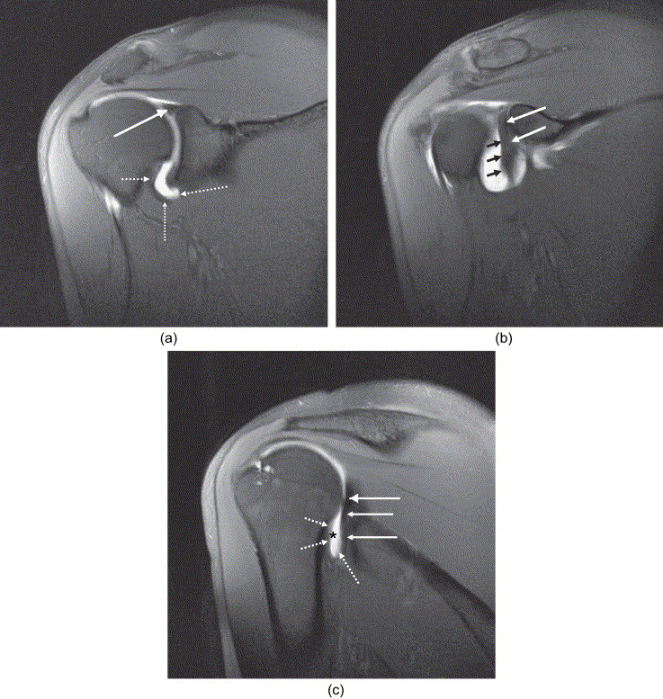 Normal anatomy and common labral lesions at MR arthrography of the ...
