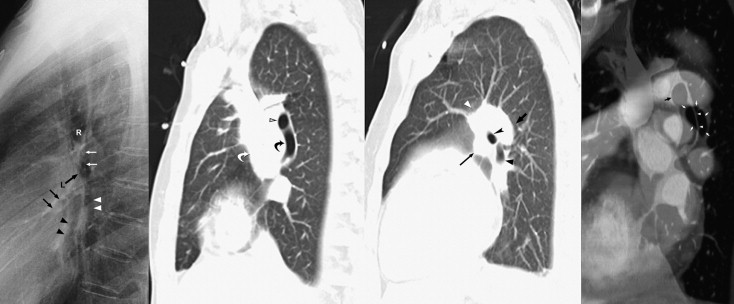 Understanding Chest Radiographic Anatomy With Mdct Reformations