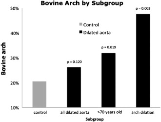 Bovine aortic arch: A novel association with thoracic aortic ...