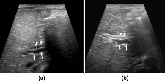 Kasai Procedure Ultrasound