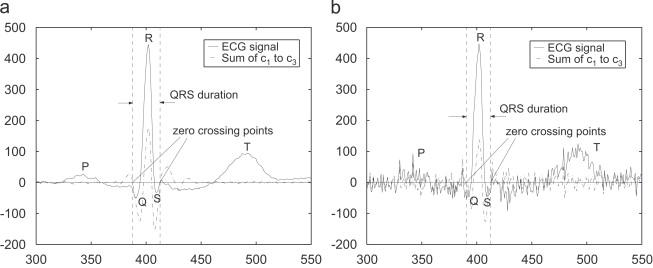 ECG signal denoising and baseline wander correction based on