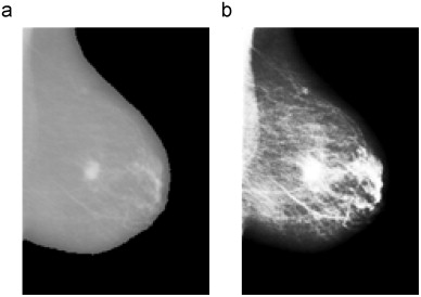 Detection Of Masses In Mammogram Images Using Cnn Geostatistic