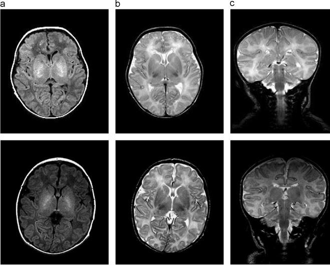 Neonatal Brain Mri Segmentation A Review Sciencedirect