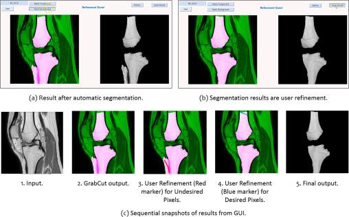 An interactive medical image segmentation framework using