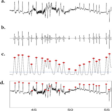 QRS complex detection in ECG signals using locally adaptive weighted