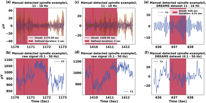 Identifying sleep spindles with multichannel EEG and classification