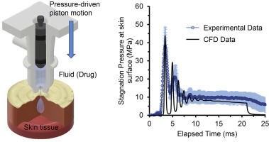 Computational fluid dynamics of impinging microjet for a needle-free