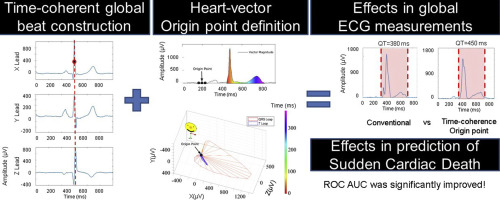 Importance of the heart vector origin point definition for an ECG