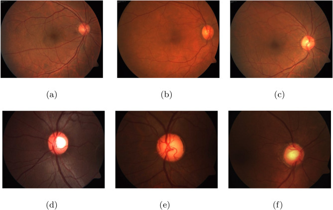 Automated glaucoma diagnosis using bit-plane slicing and local