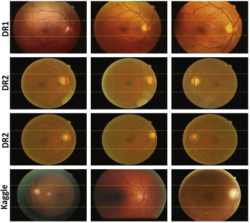 Quality and content analysis of fundus images using deep