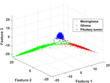 Brain tumor classification using deep CNN features via transfer