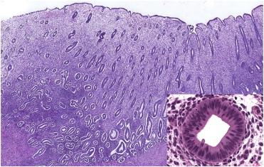 Histologie endometrium dating Dating regels in North Carolina