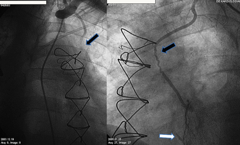 Stent Graft Implantation In Spontaneously Recanalized Lima Graft