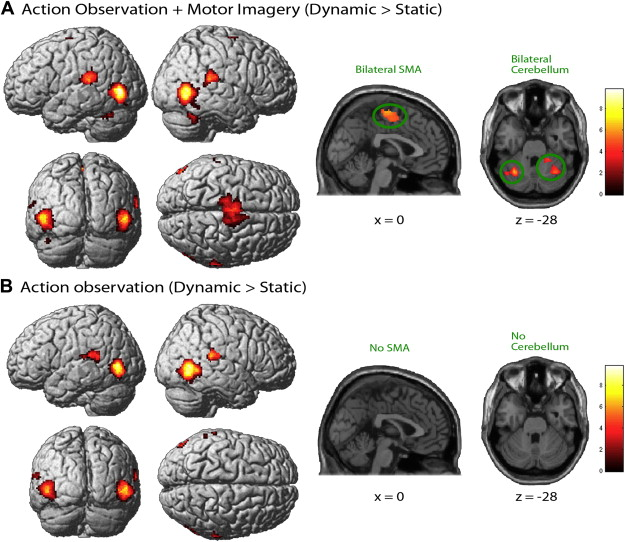 Brain activity during observation and motor imagery of