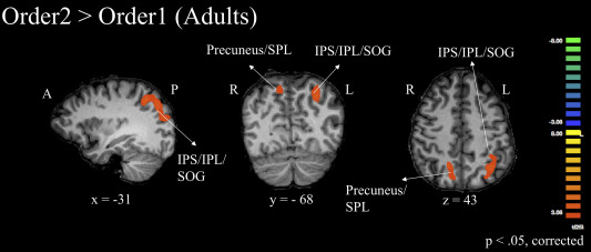 Developmental specialization of the left intraparietal sulcus for