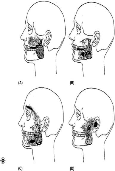 plaquenil maculopathy risk