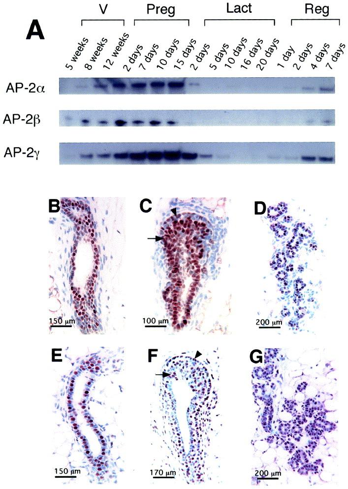 Overexpression of transcription factor AP-2α suppresses mammary ...